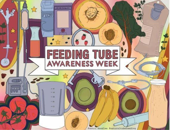 I can eat while I sleep, what is your superpower? – A story about feeding tubes and CF